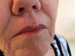 посттравматическая фиброма верхней губы