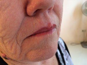 дифференциальная диагностика фибромы верхней губы и герпеса