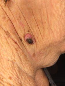 начинающийся некроз образования кожи