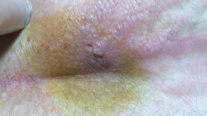 воспалительные заболевания области копчика