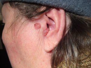 болезни кожи области уха