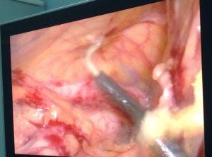 визуализация яичниковой вены