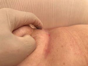 """Палец указывает """"+"""" симптом втяжения над переходной складкой левой молочной железы. Боковая проекция"""