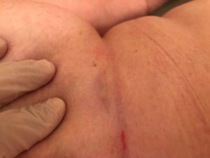 Смещение молочной железы визуализирует патологический очаг
