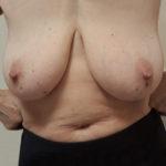 Внешний вид при раке молочной железы