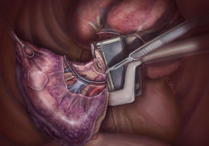 Торакальная хирургия