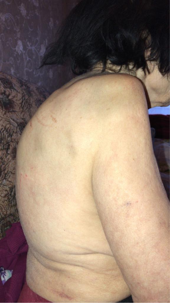 Вывих плеча. Симптомы. Лечение в Ростове-на-Дону